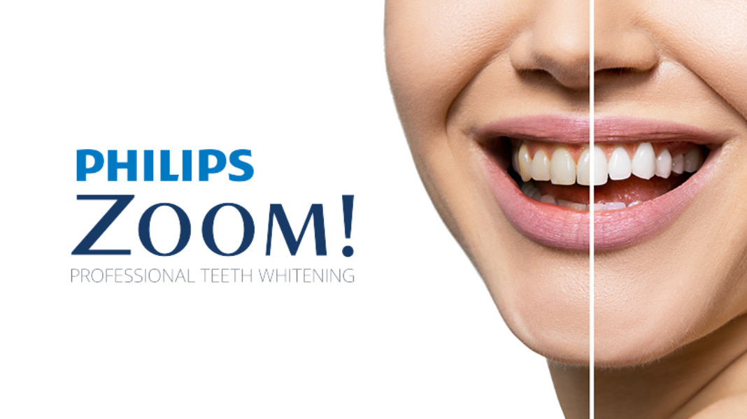 Philips Zoom - service